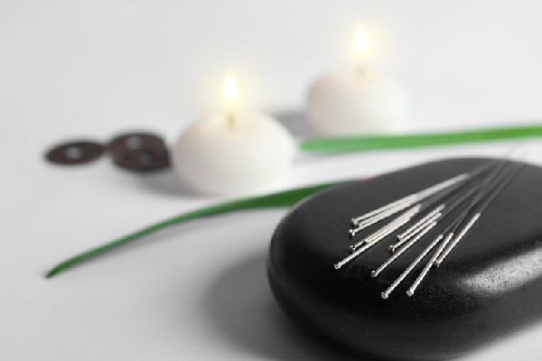 acupuncture treatment for weight loss